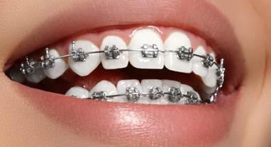 Aligner ses dents avec bagues