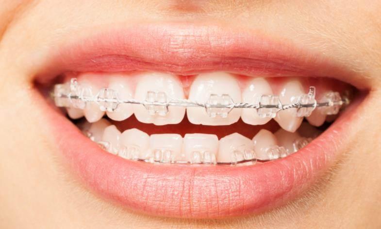 Bagues orthodontiques transparentes