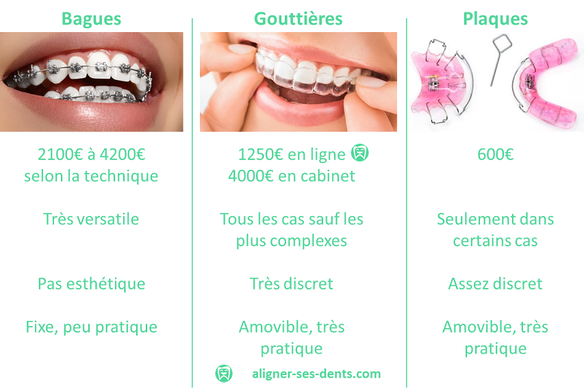 Comparatif technique aligner ses dents