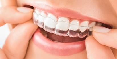 aligner les dents avec gouttière