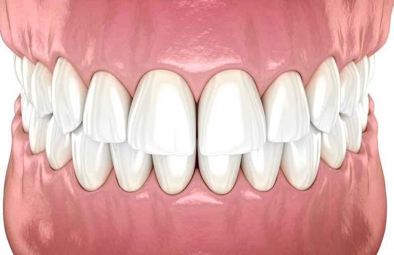 aligner ses dents