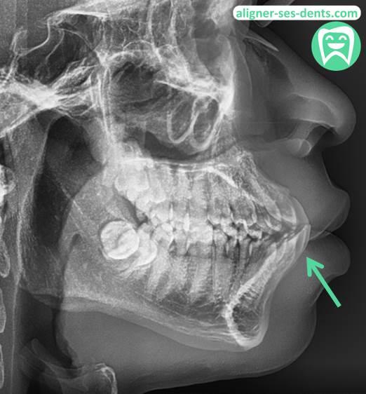 Sous-Occlusion refusé pour aligneur dentaire en ligne