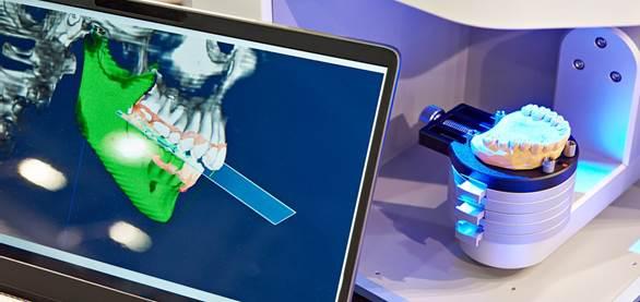 Technologie pour gouttière d'alignement